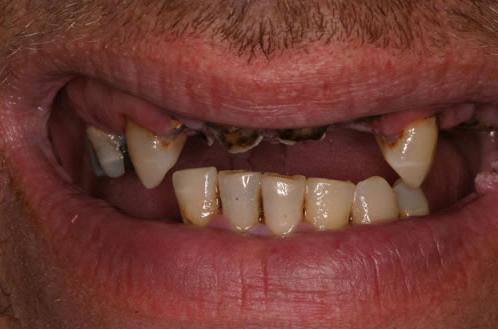 Quante Sedute Sono Necessarie Per Le Mie Nuove Radici Dentali